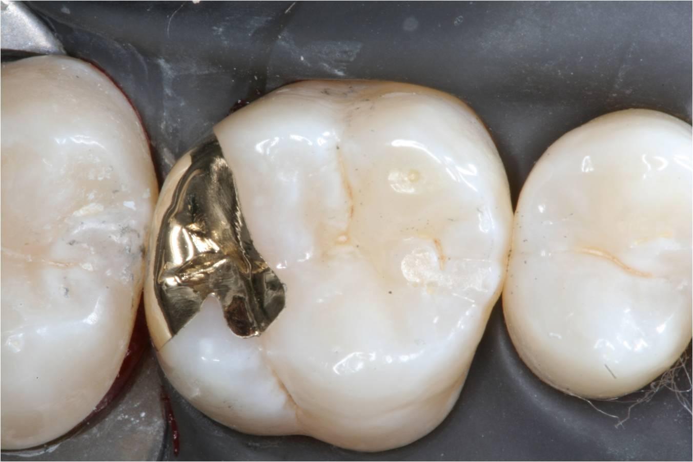 After Gold Restoration